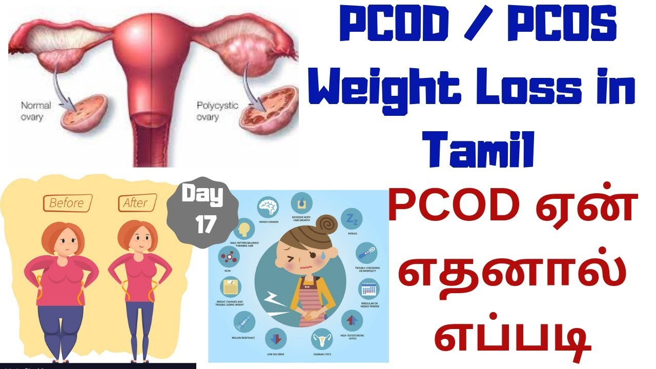 <div>PCOD/PCOS Weight Loss | Pcod Symptoms & Cure | PCOD Weight Loss Tips In Tamil | Personal Experience</div>
