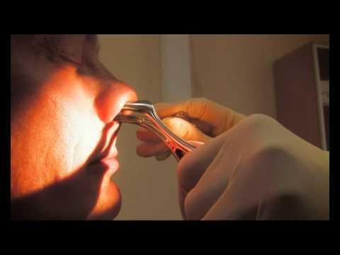 Операция при гайморите: методы хирургического лечения
