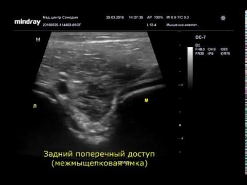 Узи анатомия коленного сустава видео флегмона области левого коленного сустава