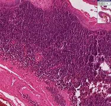 Histopathology Neck --Branchial cyst (lymphoepithelial cyst)