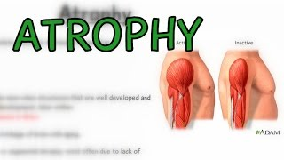What is Atrophy? Types - Cachexia
