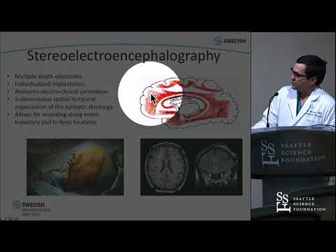 Stereoelectroencephalography (SEEG) - Carter S. Gerard, MD