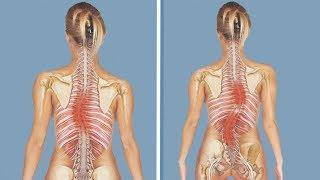 Сколиоз – опасные методы лечения и факторы провоцирующие нестабильность
