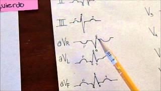 Derivaciones del EKG
