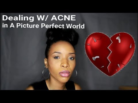 Dealing with ACNE in this world!!