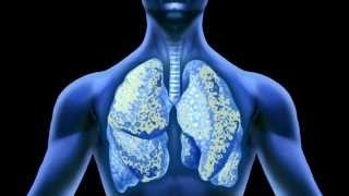 Effects of Asbestos on the Lungs