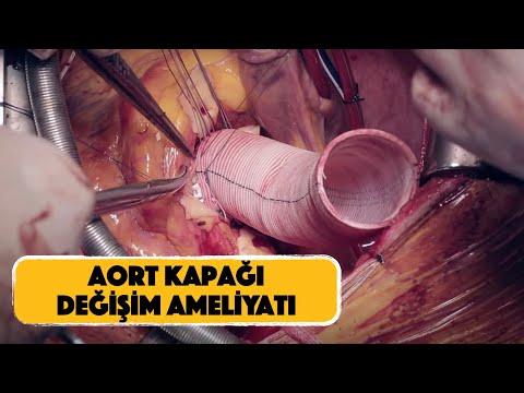 Torasik Aort Anevrizması | Aort Balonlaşması Açık Ameliyat |