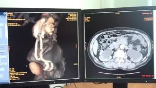 видео Урография | Мой уролог