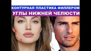 Углы нижней челюсти / Пластика филлером / Dr Rinat Sitanovich