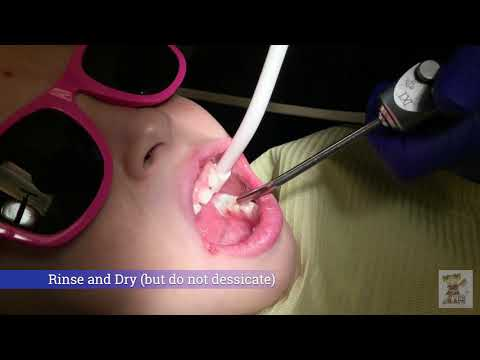 Triage Sealant Application Tutorial for Low Viscosity Glass Ionomer Cement Sealant