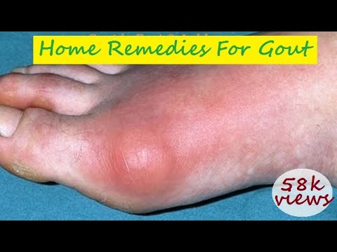 Home Remedies for Gout - Gout pain in Foot and Ankle, Foods to avoid for Gout