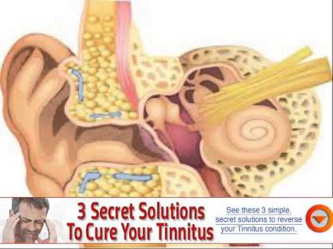 Tinnitus from eMedicine Health 2