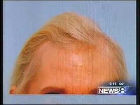 FEMALE HAIR TRANSPLANT AND HAIR LOSS NEWS SEGMENT
