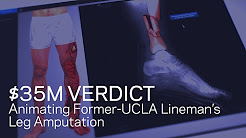 $35M Verdict Animating Former-UCLA Lineman's Amputation