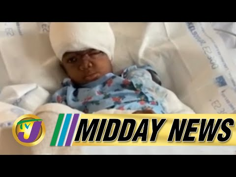 Survivor of Vicious Dog Attack Recovering Well   TVJ Midday News - June 14 2021
