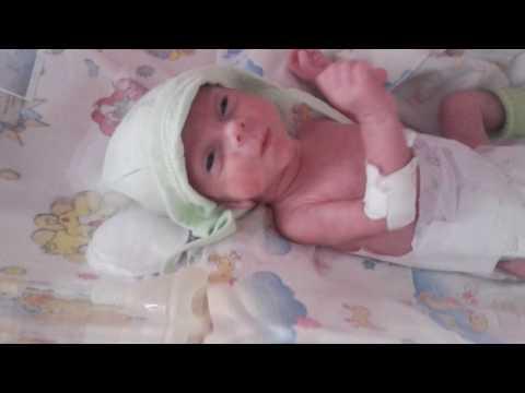 Родился на 29 неделе беременности. Недоношеный ребенок. Преждевременно рожденный.