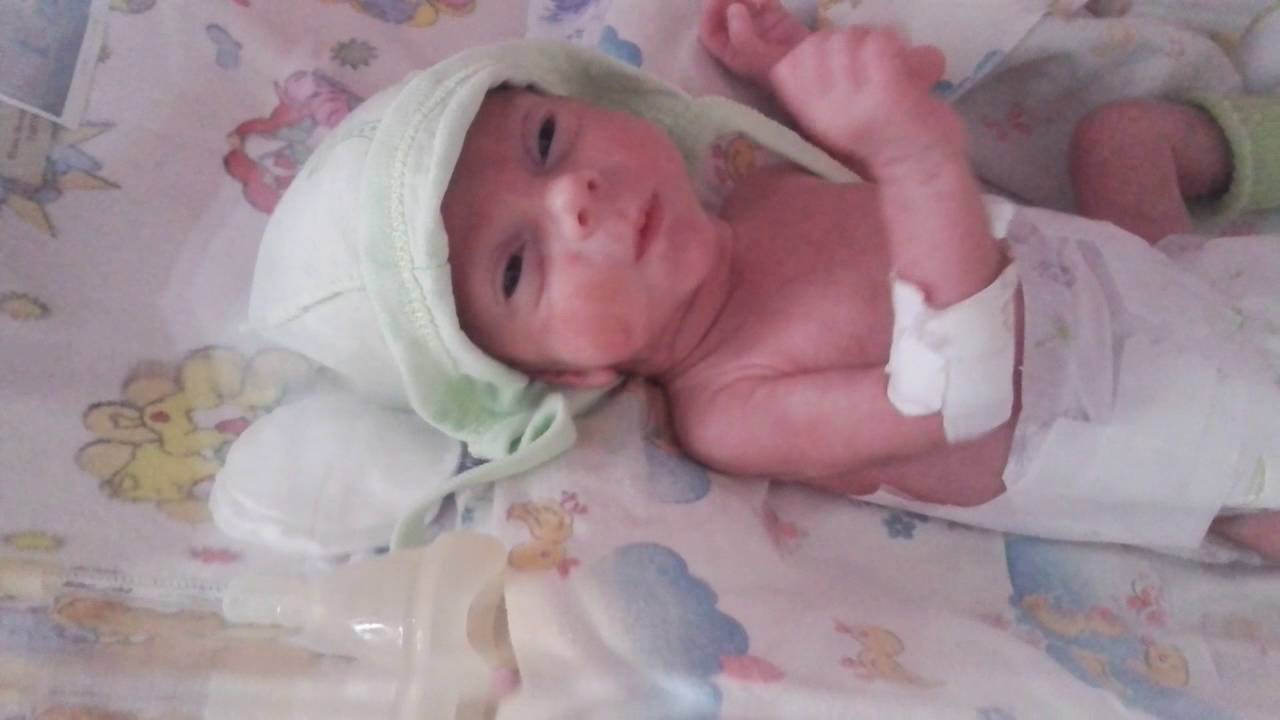 Ребенок рожденный в 28 недель беременности фото
