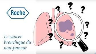 La cancer bronchique : symptômes, diagnostic et traitement | Roche