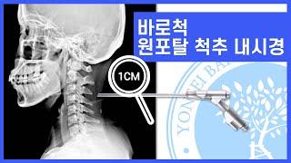 바로척 원포탈(1Portal) 척추내시경은 어떤 시술일…