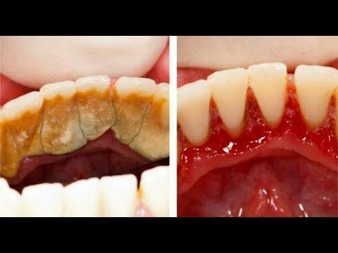 Cara Memutihkan Gigi Yang Kuning Alami Dan Cepat