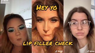 Hey yo Lip filler check ~ tiktok compilation