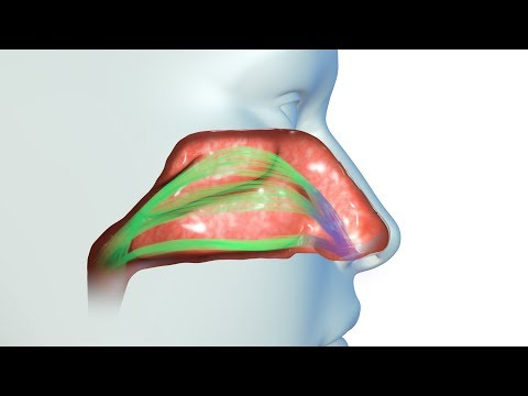 Device goes up the nose to permanently improve breathing