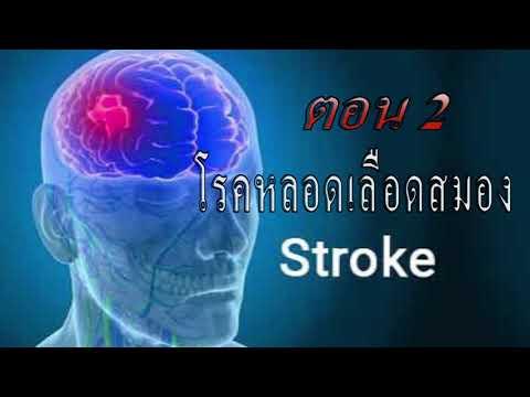 การฟื้นฟูผู้ป่วยโรคหลอดเลือดสมอง อ่อนแรง อัมพฤต อัมพฤกษ์ Stroke Ep2  | มาออกกำลังกายกันเถอะ EP.26