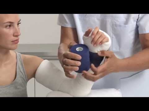 Plaster of Paris Elbow Splint Application