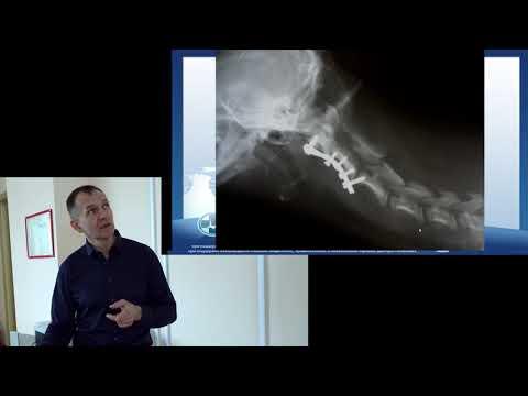 Болезни шеи . Обзор болезней в области шеи.Если боль в области шеи о чем думать?