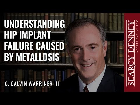 Understanding Hip Implant Failure Caused by Metallosis