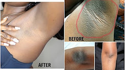 HOW TO LIGHTEN DARK UNDERARM  NATURALLY AND FAST |  PERMANENT RESULTS