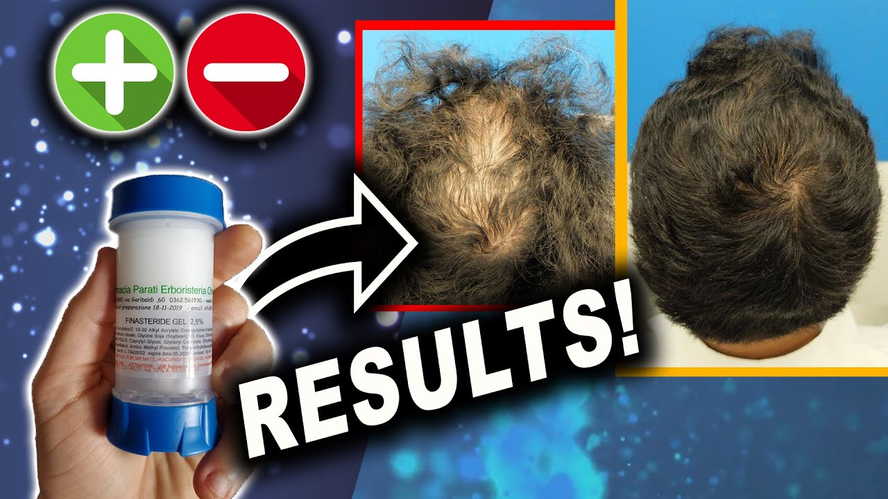 Topical Finasteride Before And After Results With Liposomal Gel Pros Cons Episode 4 Youtube