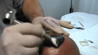 Micropigmentare scalp Artist Zarescu Dan ZDM clinica SlimArt tatuaj scalp roller 56 ace Oron57