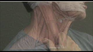 Home Trigger Point Therapy for Tinnitus, Headache, and TMJD - thorough EVALUATION ONLY revised