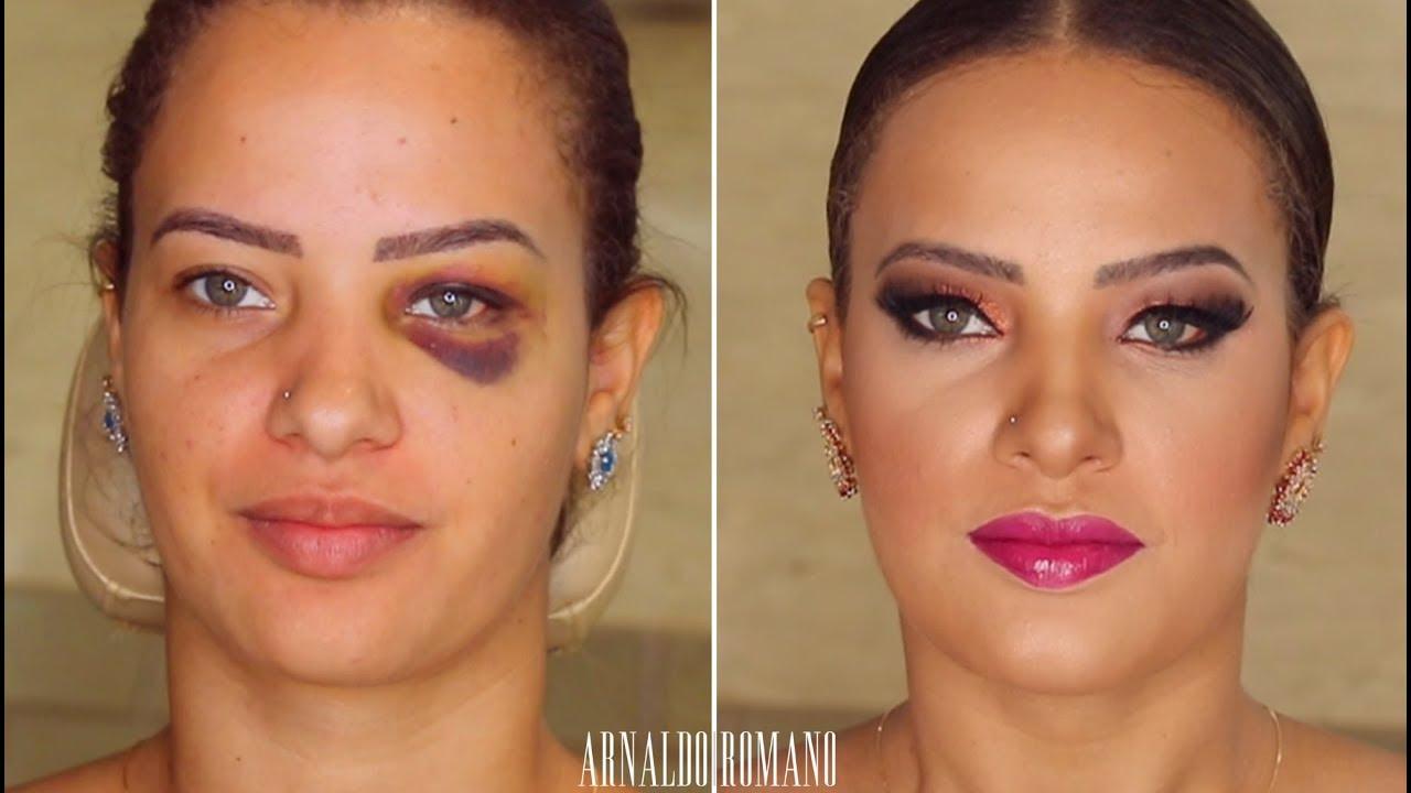 como tirar manchas de hematomas no rosto