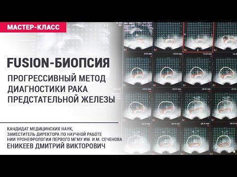 FUSION-биопсия предстательной железы