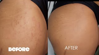 How to Cover Your Stretch Marks For Summer!!!