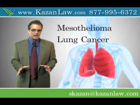 asbestos-exposure---malignant-lung-cancer---stockton-lawyer