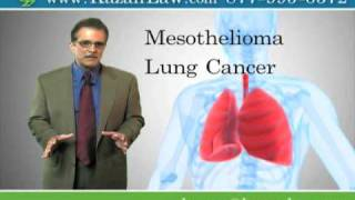 Asbestos Exposure - Malignant Lung Cancer - Stockton Lawyer