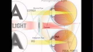 What Is An Astigmatism Of The Eye