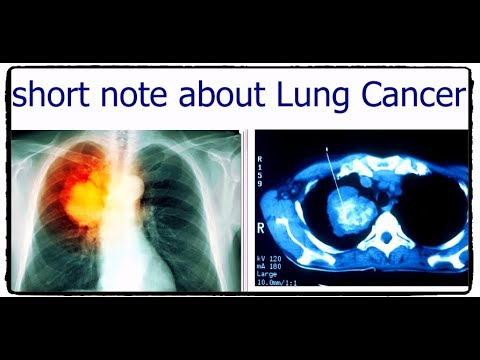 visual-guide-to-lung-cancer