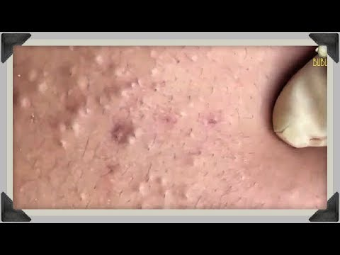 BLACKHEADS AND WHITEHEADS REMOVAL ON FACE - Acne Treatment With Relaxing Music 100337!