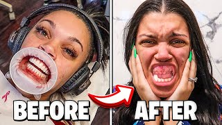 MY TEETH GOT RUINED FOREVER **VENEERS EXPERIENCE**