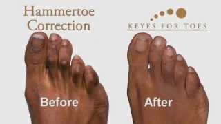 Advanced Toe Corrections - Wear your favorite shoe wear!