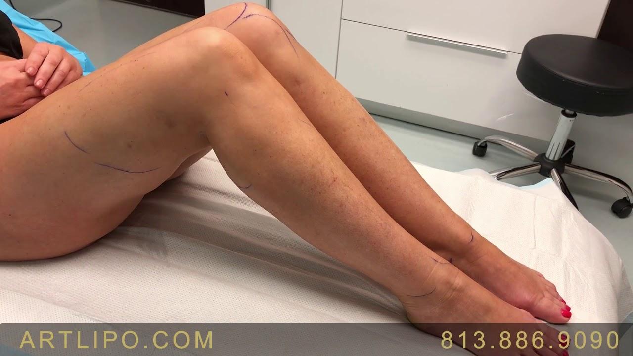 Cankles, Ankles, Calves, Knees , Legs | Lipedema Treatment | High-Def  Liposuction-17 | Expert Dr  Su by Artistic Lipo & Plastic Surgery