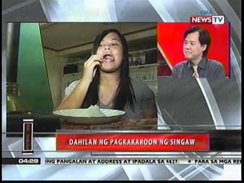 Singaw: Ano Mabisang Gamot - ni Dr Willie Ong #59 from YouTube · Duration:  6 minutes 11 seconds