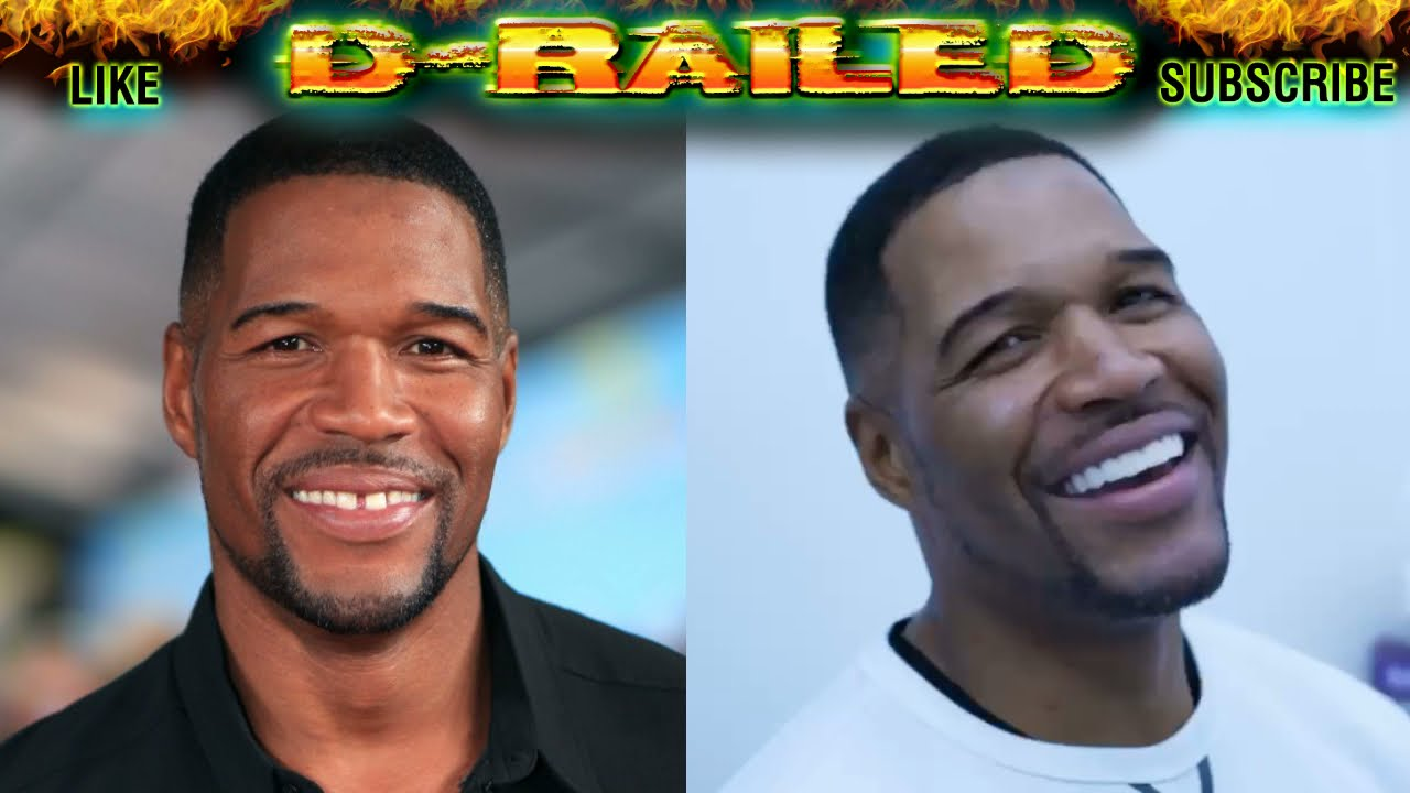 Michael Strahan Tooth GAP CLOSED - Is it an APRIL FOOL Video Review - Before & After