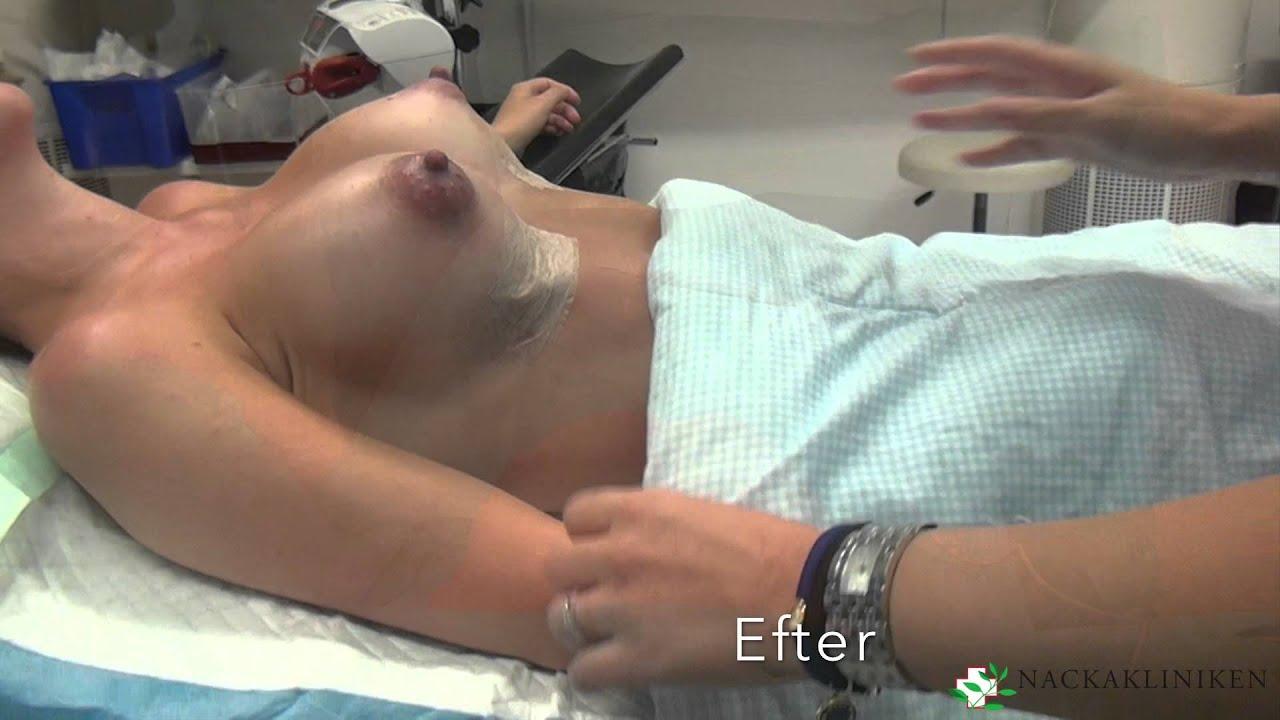 bröstförstoring 450cc före efter
