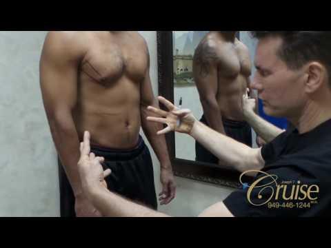 Gynecomastia Consultation with Dr. Joseph Cruise Newport Beach