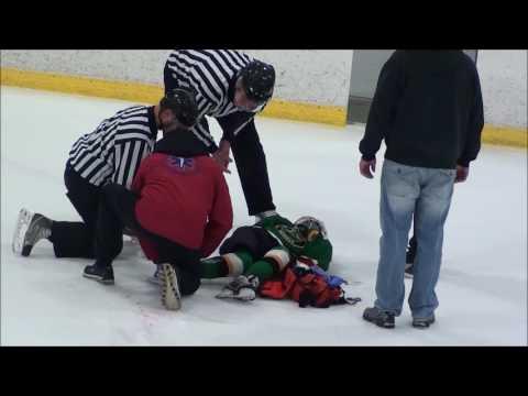 Anton injury